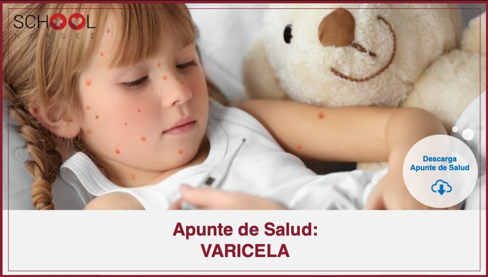 Apunte de Salud VARICELA
