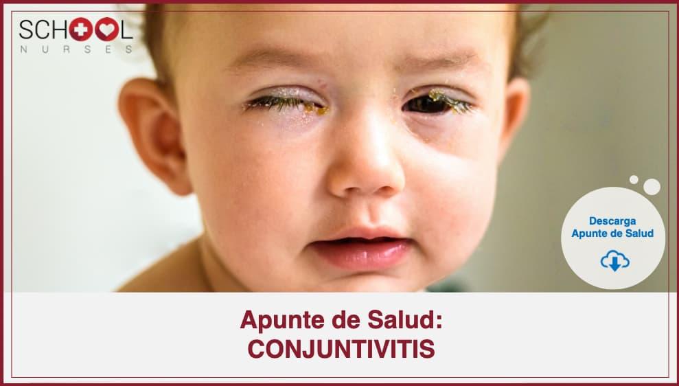 Apunte de Salud CONJUNTIVITIS