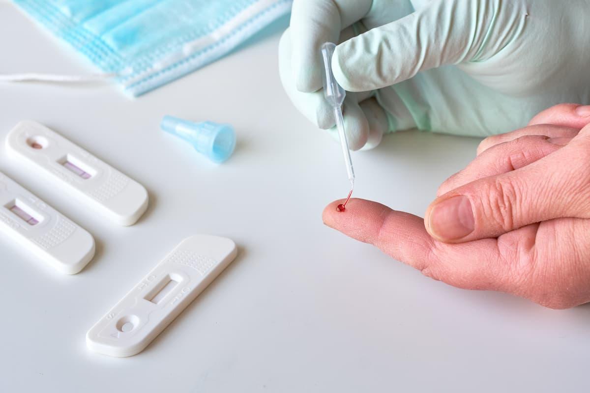Test covid sangre