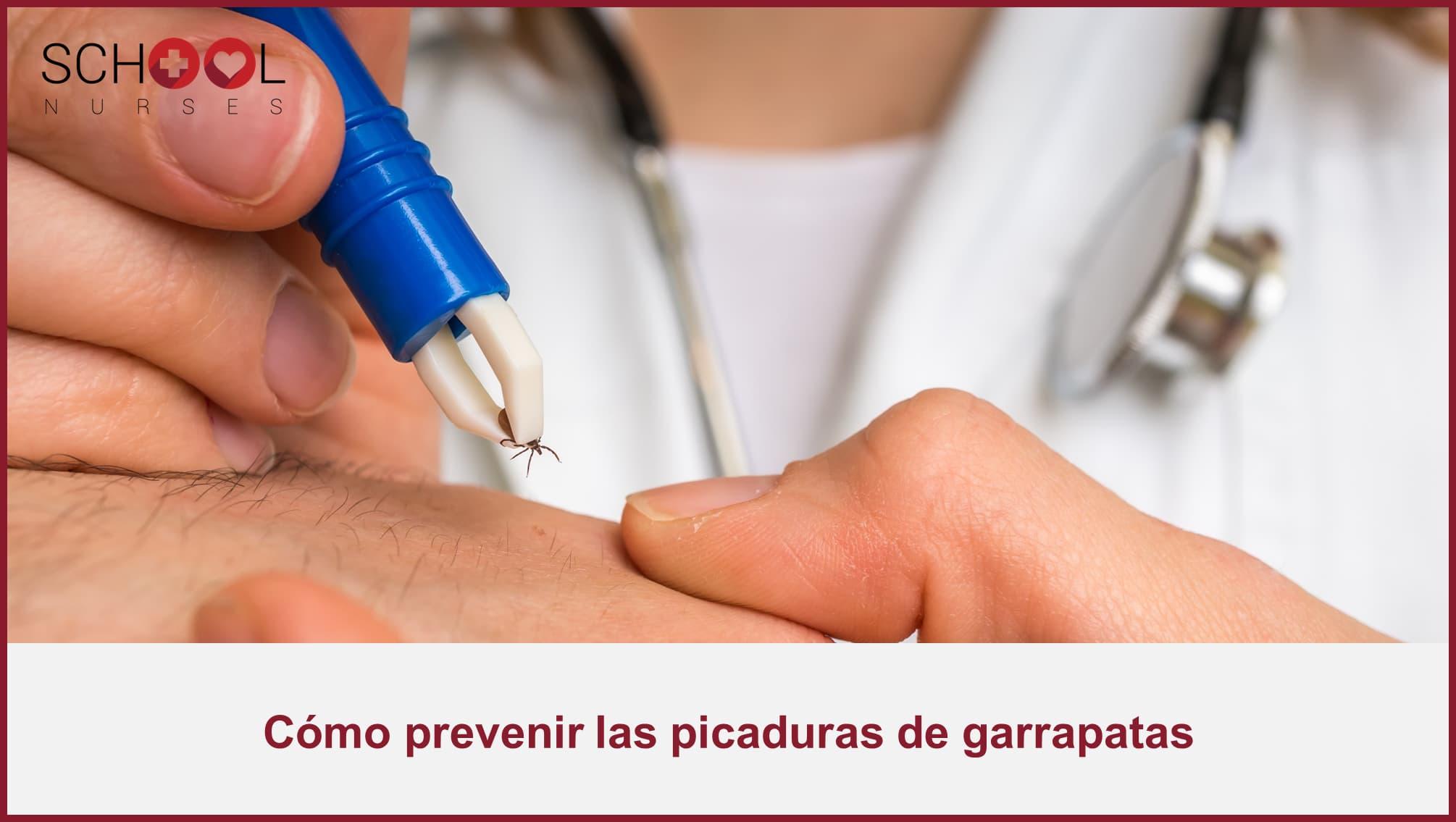 Cómo prevenir las picaduras de garrapatas