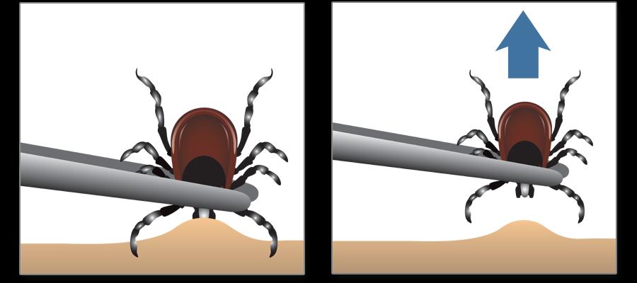 Cómo eliminar a una garrapata